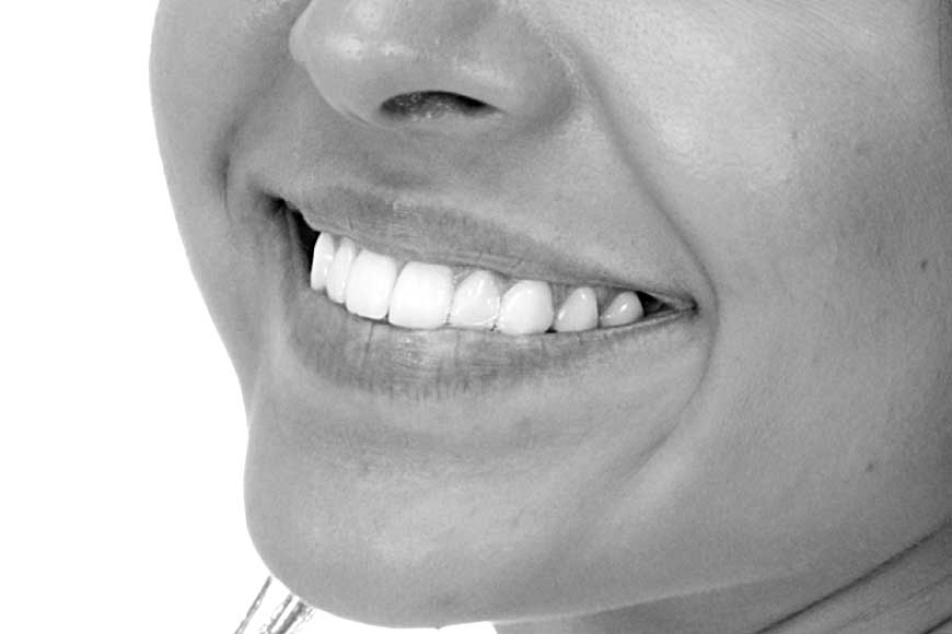 A close-up of a patient's teeth after gum contouring treatment.