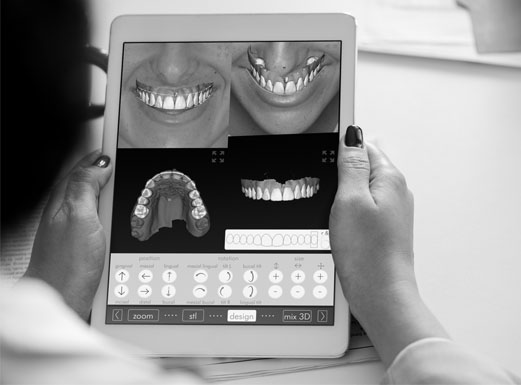 A patient looking at the Digital Smile Design app and their smile simulation on a tablet.