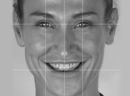 A patient's face with gridlines showing the changes Digital Smile Design makes based on his facial features.