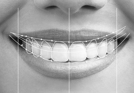 A smile design which has gridlines showing its relationship to the person's facial features.