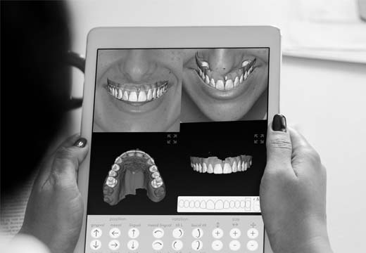 A patient using the Digital Smile Design app on a tablet to look at a simulation of their new smile.