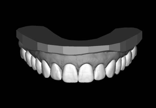 A digital example of natural-looking teeth.