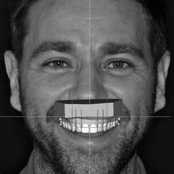 A patient and the simulation of their new smile designed using DSD.