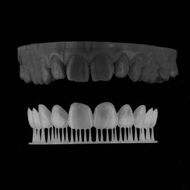 A Digital Smile Design mock-up smile that a patient can trial before their treatment begins.