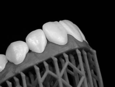 The patient's mock-up smile that they can trial before treatment begins.