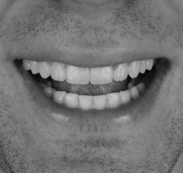 A natural-looking smile created using Digital Smile Design.