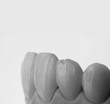 Natural-looking dental restorations produced using Digital Smile Design.