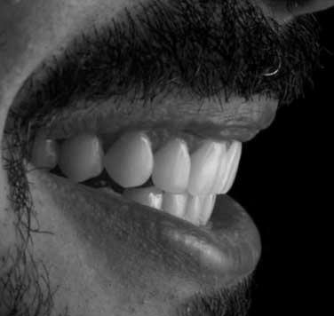 A beautiful smile designed using Digital Smile Design.